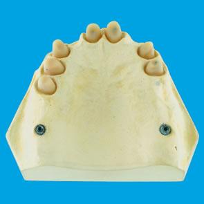 Implantate zur Pfeilervermehrung - fig.1