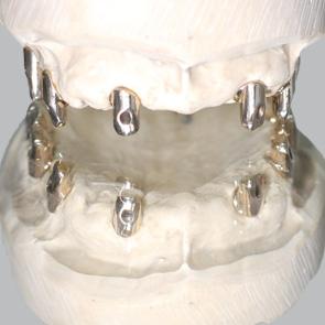 Doppelkronen auf Implantaten - fig.2