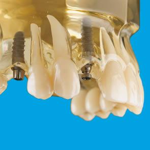 Einzelzahn-Implantate - fig.1