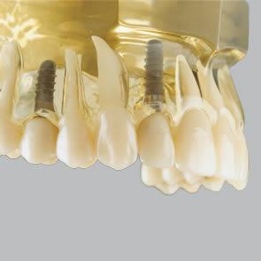 Einzelzahn-Implantate - fig.2