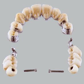 Implantate zur Pfeilervermehrung - fig.2