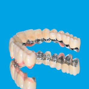 Doppelkronen auf Implantaten - fig.1