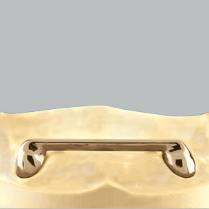 Deckprothese auf Stegen - fig.1