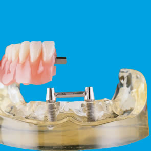 Implantate für Steg-Versorgung - fig.1