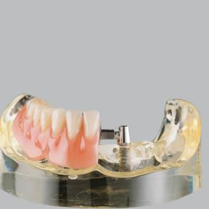 Implantate für Steg-Versorgung - fig.2