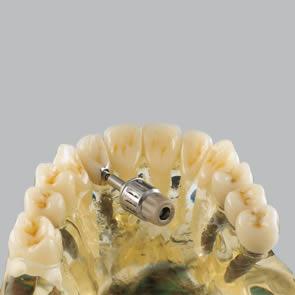 Implantate mit Verschraubungen - fig.2