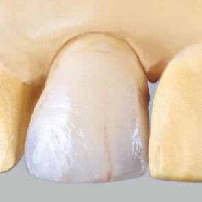 Krone – Metallkeramik mit Schulter - fig.1